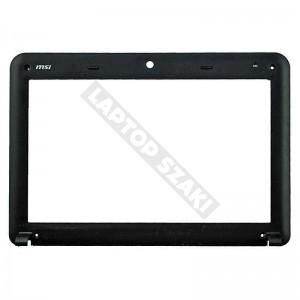 E2P-012B215-TA2 LCD keret (fekete)